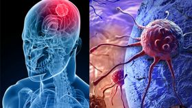 Tumores-cerebrales